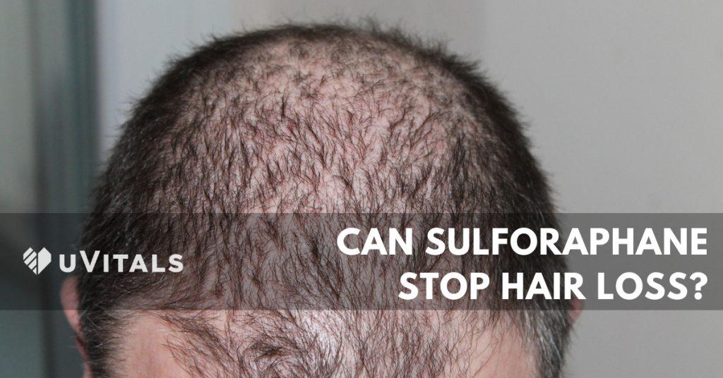 Can Sulforaphane Stop Hair Loss?